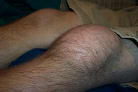 Housemaids knee - Pre Patellar Bursitis